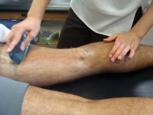 ASTYM soft tissue treatment